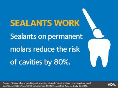 Dental sealants work