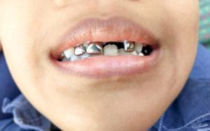 Child smiling with three stainless steel dental crowns