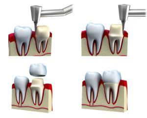 The four steps of dental crown preparation and placement