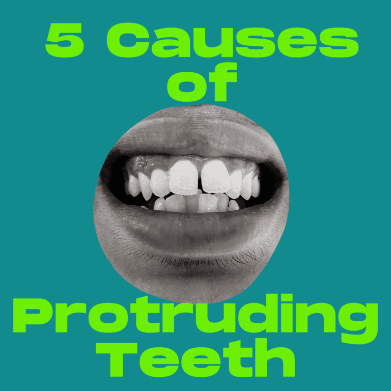 5 Causes of Protruding Teeth (1)