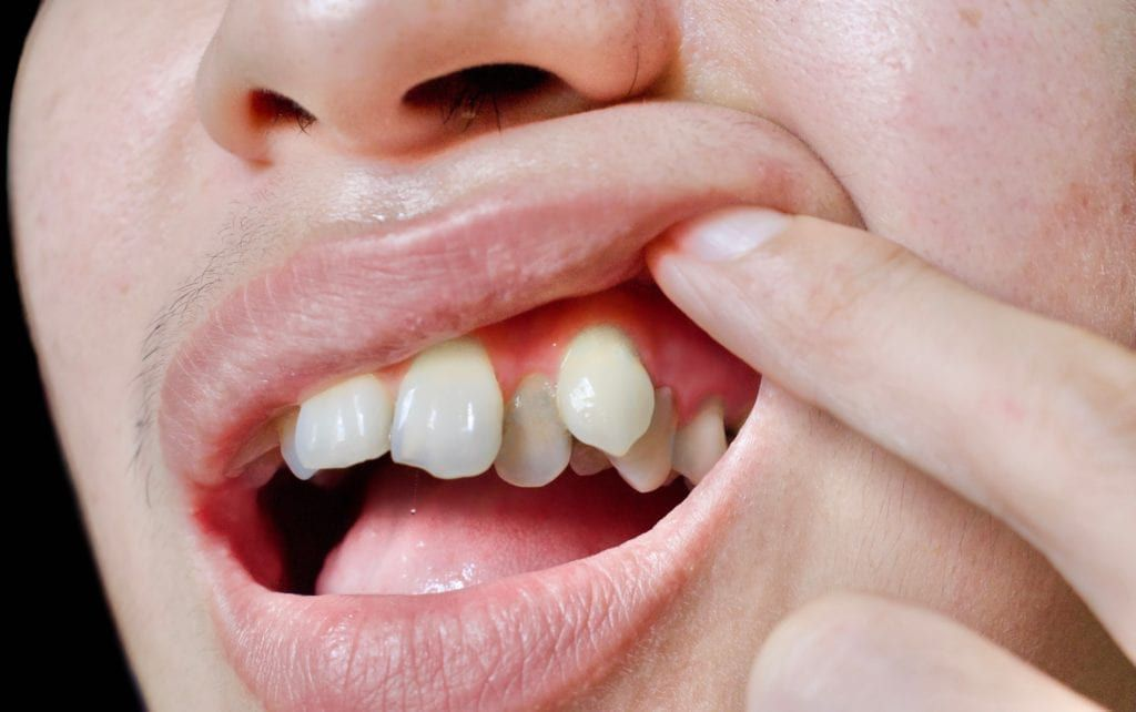 overcrowded front teeth