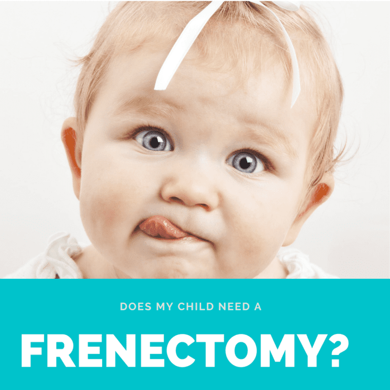 Does my child need a frenectomy (1)