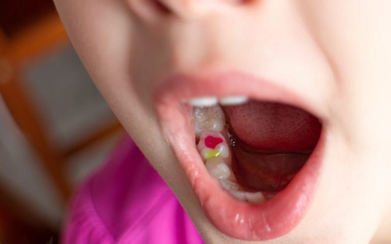Child with colored dental fillings